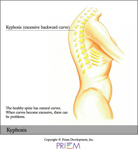 Kyphosis, minimally invasive scoliosis surgery texas, minimally invasive scoliosis surgery Austin, back pain treatment Austin, Scoliosis second opinion Austin, Flatback syndrome Austin, Scoliosis second opinion Texas, Flatback syndrome Texas, mini scoliosis surgery Texas, back pain Austin, neck pain Austin, spine surgery Austin, spine care Austin, spine surgeon Austin, scoliosis surgery waco, scoliosis treatment in texas, Scoliosis treatment in Louisiana, scoliosis doctor Austin, pediatric scoliosis surgeon texas, who is the best surgeon for scoliosis correction Texas, specialist in scoliosis Texas, scoliosis and spine surgery waco, degenerative scoliosis treatment in texas, scoliosis doctor austin texas, pediatric scoliosis surgeon in texas