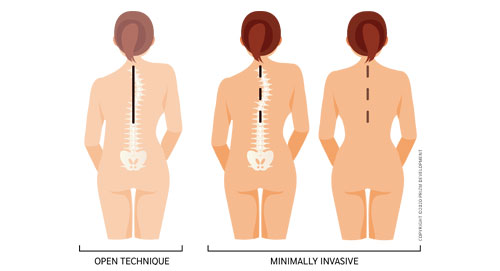 minimally invasive scoliosis surgery versus traditional scoliosis surgery texas